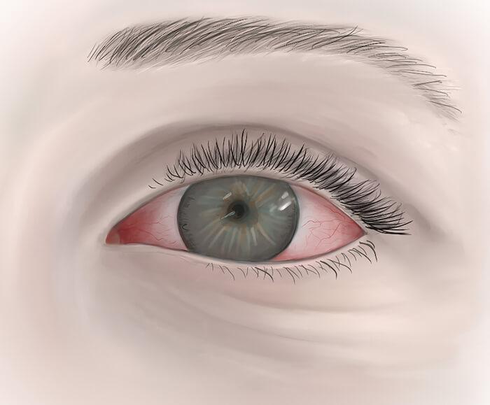 Illustration of inflamed, red eye