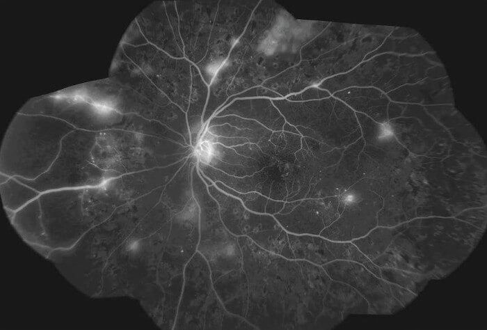 Diabetic Retinopathy as seen with Fluorescein angiography