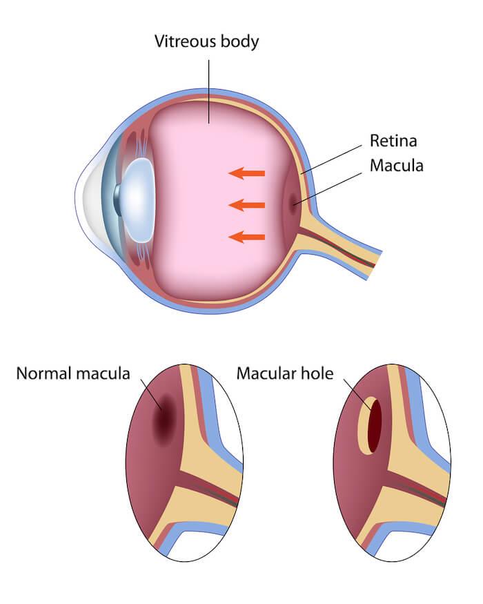 Diagram of macular hole