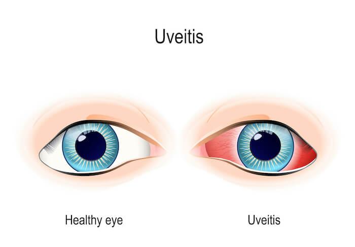 Uveitis eye vs. healthy eye diagram